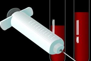 孕妇糖筛查血糖的过程糖筛后的医生建议